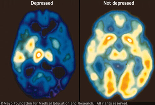 depressed-and-not-depressed-brain